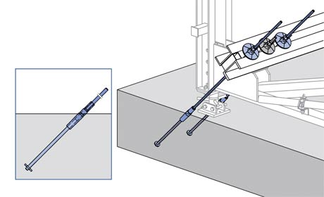 Anchoring with stop anchors